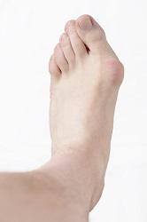 Hallux Valgus, Bunion In Foot